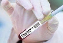 Κορονοϊός – Αναστολή δοκιμών εμβολίου AstraZeneca: Ο Νίκος Σύψας εξηγεί τι συνέβη Merida, New York Times, Asia News, Health Ministry, Blood Test, Death, Country, Maurice, People
