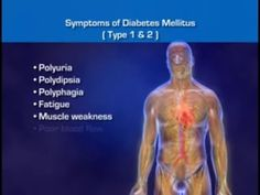 Diabetes Mellitus - Signs Of Diabetes, Diabetes Symptoms and Diabetes Pathophysiology -  CLICK HERE for the Big Diabetes Lie #diabetes #diabetestype1 #diabetestype2 #diabetestreatment  Diabetes mellitus is a chronic, lifelong condition that affects your body's ability to use the energy found in food. There are three major types of diabetes: type 1 diabetes, type 2 diabetes,... - #Diabetes