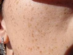 How to reduce freckles, wrinkles and brown spots in one month Make Beauty, Clean Beauty, Beauty Skin, Health And Beauty, Remover Manchas, Spa Day At Home, Brown Spots, Tips Belleza, How To Get Rid