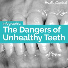 Learn the dangers of unhealthy teeth and why dental health matters-- click for the full info graphic:  http://www.healthcentral.com/diet-exercise/c/458275/168528/unhealthy-infographic?ap=2012