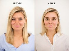 Our editor's before-and-after baggy eye fix