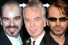 Billy Bob Thornton Hair Before After - http://www.celeb-surgery.com/billy-bob-thornton-hair-before-after/?Pinterest