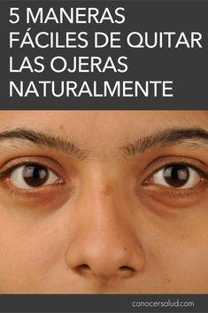 5 Maneras fáciles de quitar los círculos oscuros bajo los ojos (ojeras) naturalmente #salud