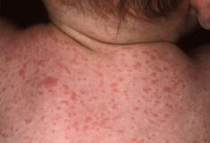 Photo of Roseola Infantum Skin Rash on Baby