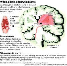 Brain damage from aneurysm