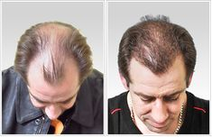 We offer unique ideas for maintaining your hair beauty from our fue hair transplant methods at the Reviva Clinic in India.