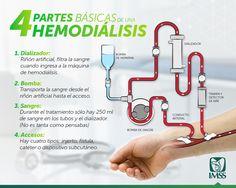 La hemodiálisis es una técnica de sustitución de la función renal. Los desechos tóxicos del riñón son eliminados.