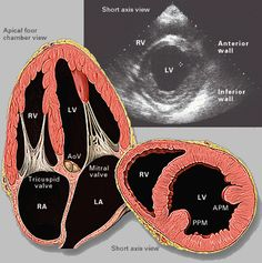 Echocardiography Images | Yale Atlas of Echo- Senile aortic stenosis