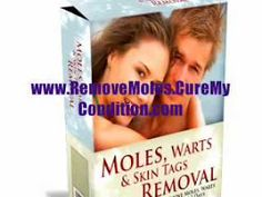 There are hundreds of organic treatments when it involves eliminating an undesirable mole from your body. While there are a lot of alternatives available, a growing number of people are picking Natural Mole Removal treatments. Natural Mole Removal solutions are the less expensive solution to uncomfortable surgical treatment. Here are a few treatment options, which you could use in your daily life and obtain exceptional outcomes.