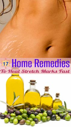 17 Home Remedies to Heal Stretch Marks Fast