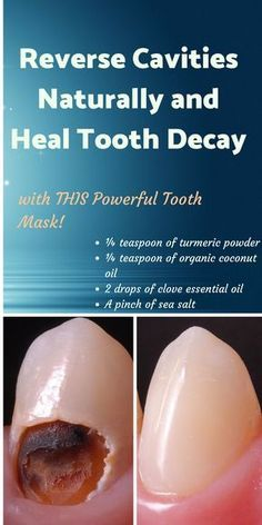 reverse cavities naturally + reverse cavities naturally homemade toothpaste + tooth mask + tooth cavity remedies #tooth #toothcavity