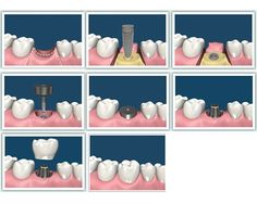 A dental implant is an artificial tooth root that is placed into your jaw to hold a replacement tooth (crown), bridge or even an over-denture. Dental implants may be an option for people who have lost a tooth or teeth due to periodontal disease, an injury, or some other reason. Dr Dhawal Somani is best dentist in Ahmedabad. For more information visit this url - www.ahmedabadorthodental.com/advanced-dental.html and contact to us @ 07940057100.