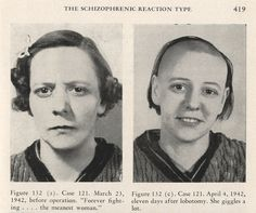 Do you need a lobotomy? Lobotomy Before and After pics Mental Asylum, Insane Asylum, Advertising Pictures, Asile, Frontal Lobe, Creepy Photos, Mental Disorders, Before And After Pictures, Socialism