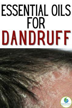 Essential Oils for Dandruff Remedy