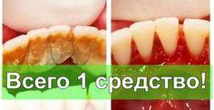 Отличный способ избавиться от зубного камня самому и дома!   Будете Здоровы