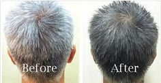 Share Tweet + 1 Mail Grey hair is something we all dread; genetic genes and stress are usually blamed for causing premature greying. But ...
