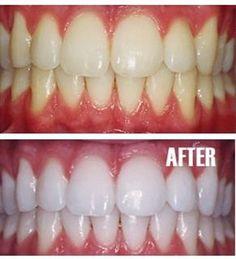Mettez un tout petit peu de dentifrice dans une petite tasse, ajouter une cuillère à café de bicarbonate, mélanger,puis une cuillère à café d'eau oxygénée et la moitié d'une cuillère à café d'eau, bien mélanger puis brosser vos dents pendant 2 minutes. A faire une fois par semaine jusqu'à atteindre le résultat souhaité, ensuite limitez vous à le faire une fois par mois ou tous les deux mois.