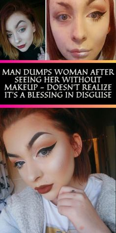 Most people have struggled with acne at some point in their lives by the time they reach young adulthood. #Makeup #Blessing #Disguise Bridal Heels, Perfume, Helium Balloons, Diy Carpet, Fruit Art, Pastel Hair, Without Makeup, Hollywood Celebrities, Pixie Hairstyles