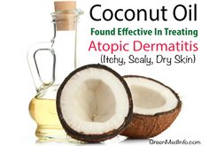 The power of coconut oil as a topic healing agent in chronic, inflammatory skin conditions like atopic dermatitis has recently been confirmed.