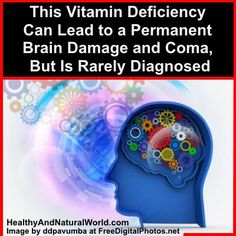 This Vitamin Deficiency Can Lead to a Permanent Brain Damage and Coma, But Is Rarely Diagnosed