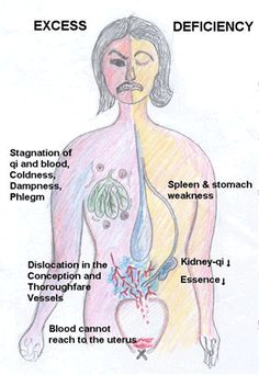 Side Effects Acupuncture How TCM Views the Development of Amenorrhea (Missed Periods) Acupuncture For Anxiety, Acupuncture Benefits, Acupuncture Points, Massage Benefits, Acupressure Points, Pcos Medicine, Herbal Medicine, Traditional Chinese Medicine, Health Facts