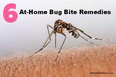 No medicine cabinet needed! 6 All-Natural Bug Bite Remedies BiteSizeWellness.com