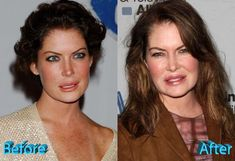 Celebrity Plastic Surgery Cosmetic Surgery Gone Wrong Is