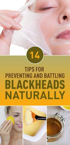 14 Tips For Preventing and Battling Blackheads Naturally