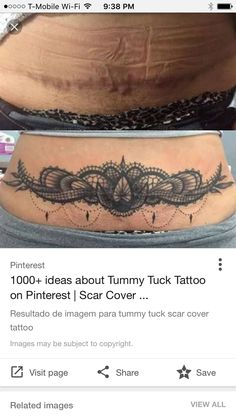 Tummy tuck cover up
