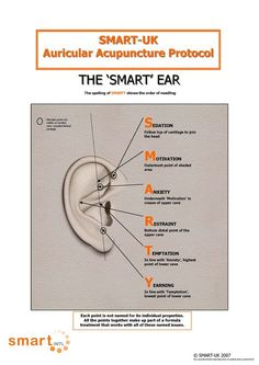 auricular-acupuncture - Google Search