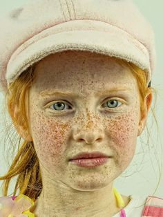 Love those freckles