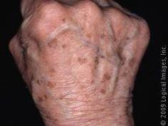 Skin blemishes. Senile Lentigo