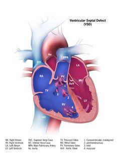 Con Heart Disease