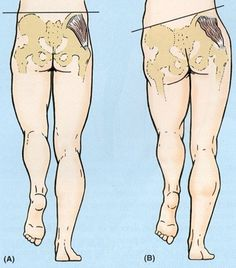 The role of the gluteus medius during activities such as walking and running is to dynamically stabilize the pelvis in a neutral position during single leg stance.  As you can see in the photo below, weakness of the right gluteus medius will cause the left hip to drop when standing on the right limb. Repinned by SOS Inc. Resources http://pinterest.com/sostherapy.