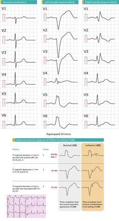 Bundle Branch Block, Qrs Complex, Ekg Interpretation, Cardiac Rhythms, Medical Mnemonics, Critical Care Nursing, Cardiac Nursing, Nursing Tips, Nclex