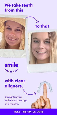 Are you a candidate? Straighten your smile with SmileDirectClub clear aligners for up to 60% less. Take the free 30-sec smile quiz to see how it works.