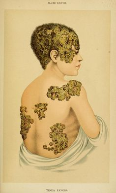 Tinea Favosa, An American Text-Book of the Diseases of Children. Louis Starr, 1900