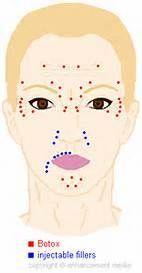 Résultat d'images pour Botox Injection Sites Chart Botox Face, Botox Lips, Botox Injection Sites, Botox Injections, Botox Fillers, Dermal Fillers, Face Fillers, Cosmetic Treatments, Skin Treatments