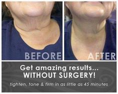 Revitalize your neck with the face/neck applicator. Available at:  http://nadiabefit.myitworks.com/