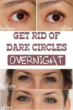 Get Rid of Dark Circles Under Your Eyes Overnight