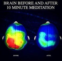 La practica de meditación permite restablecer el equilibrio natural entre la…