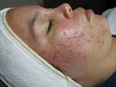 Doxycycline Acne Before and After The best acne treatment theacnecode.com