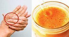Une boisson miracle naturelle qui vous aide à combattre l'arthrose et à soulager quasi-immédiatement l'inflammation et la douleur qui l'accompagnent.