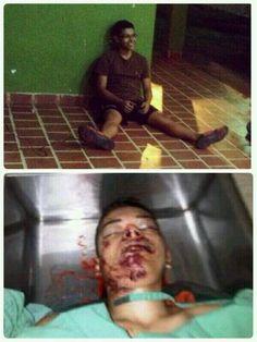Anthony Rojas, estudiante de ingeniería de 18 años, asesinado de un  disparo a la cara en San Cristóbal.