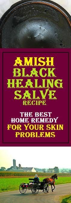 Amish Black Healing Salve #amish #healthy #skincare  #lifestyle