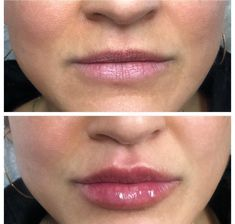 Botox Fillers, Lip Fillers, Lip Job, Body Surgery, Facial Procedure, Lip Pictures, Facial Aesthetics, Lip Augmentation, Lip Shapes
