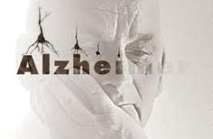 Alzheimer y diabetes no diagnosticada