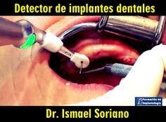 Detector de implantes dentales | Odonto-TV