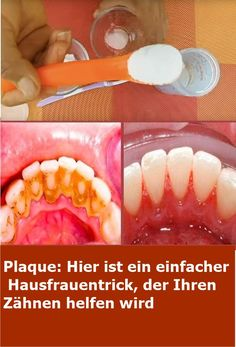 Plaque: Here's a simple housewife's trick that will help your teeth - Mundpflege Skin Tag Removal, Health Tips For Women, Food Allergies, Healthy Kids, Teeth Whitening, How To Lose Weight Fast, Natural Remedies, Beauty Hacks, Health Fitness