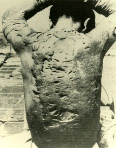 The damage of atomic bomb which Japanese Hiroshima received.   Keloids unique to atomic bomb victims.